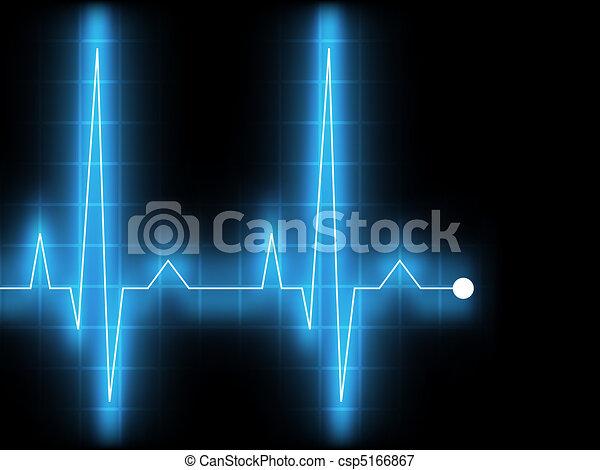 electrocardiogram., eps, 8 - csp5166867